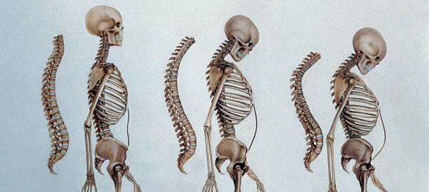 علل بروز پوکی استخوان و راه های درمان آن- پایگاه اینترنتی دانستنی در ایران