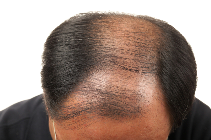 چگونه به رشد- پایگاه اینترنتی دانستنی در ایران سریع موهای سر خود کمک کنیم؟