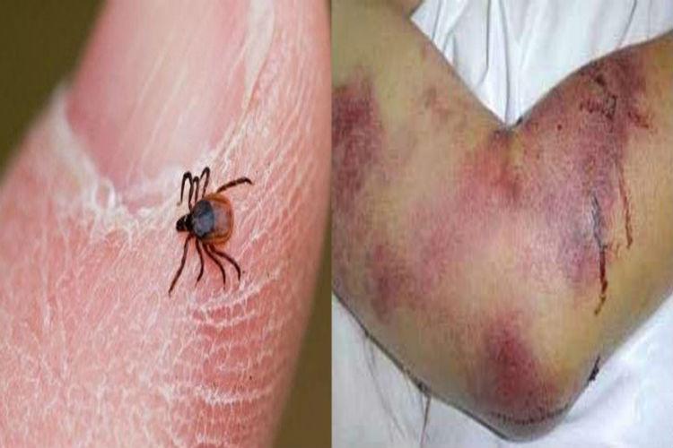 علائم و راههای پیشگیری از تب کریمه کنگو + اینفوگرافی