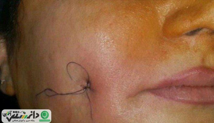 چرا جراحی های زیبایی در ایران طرفداران زیادی دارد؟