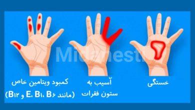 آیا می دانید سوزن سوزن شدن هر ناحیه از کف دست نشان دهنده یک بیماری است ؟