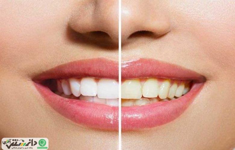 هرآنچه برای داشتن دندان های سالم نیاز دارید