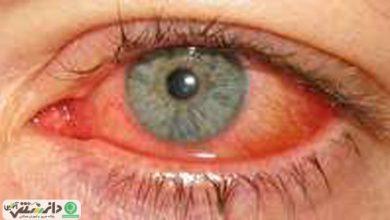 بیماری کنژنکتیویت آدنو ویروسی، بیماری عفونت چشمی واگیردار