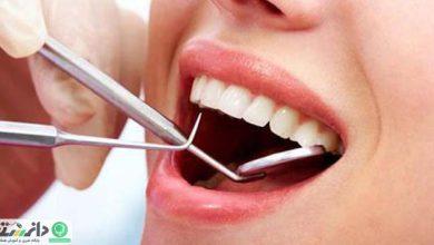 جرم گیری دندان درست یا نادرست؟