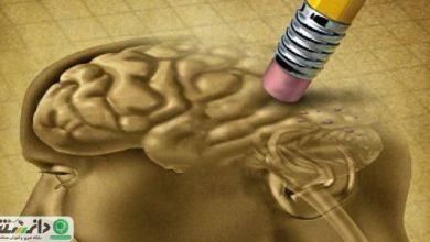 از بیماری دمانس ( زوال عقل) چه می دانید ؟+ویدئو