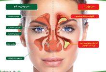 درمان سینوزیت و از بین بردن عفونت سینوس با سرکه سیب
