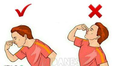 یک عکس العمل غلط هنگام خون ریزی بینی