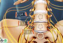 درمان سیاتیک در طب سنتی +ویدئو