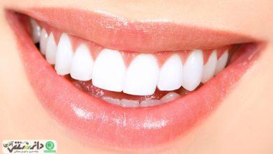 6 ترفند ارزان که دندان هایتان را مثل مروارید سفید می کند