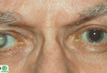 مراقب چشمانتان باشید تا فراموشی نگیرید