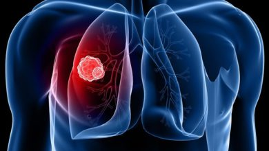 علائم سرطان ریه چیست؟ +اینفوگرافی
