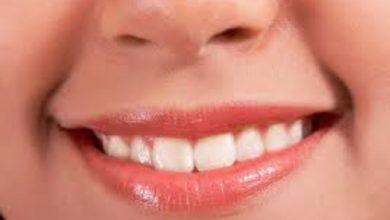 شش ترفنـــــد خانگی برای سفید کردن دندان ها +اینفوگرافیک
