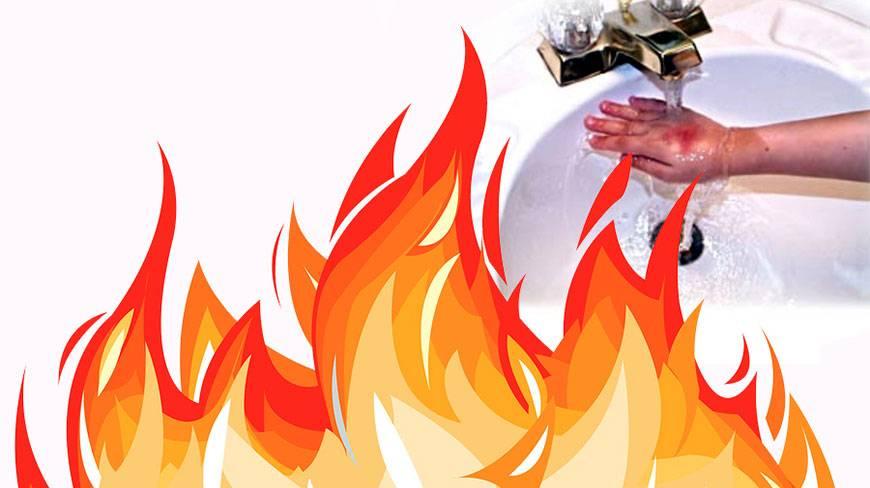 کمک های اولیه در هنگام سوختگی با آتش- پایگاه اینترنتی دانستنی ایران