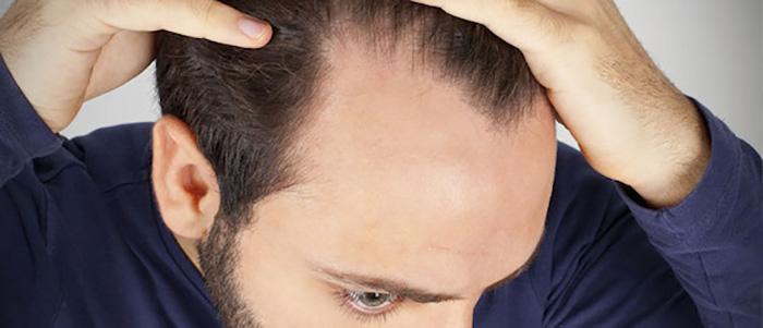 چرا ریزش موی مردان بیشتر از زنان چیست؟- پایگاه دانستنی آنلاین