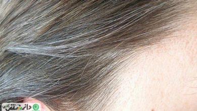 رفع سفیدی مو با شامپو کذب است
