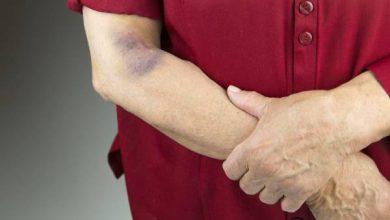 کدام دردها با کمپرس یخ و کدام دردها با گرم درمان می شوند؟