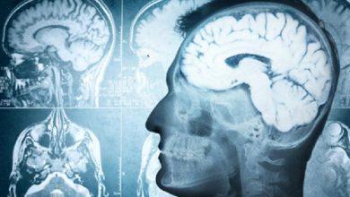 ساختار مغز مانند اثر انگشت منحصربفرد است