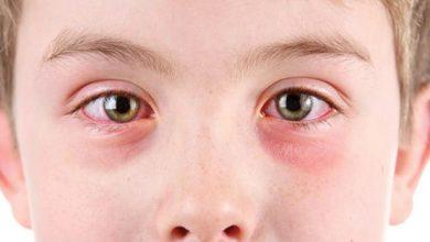 بیماری های چشمی در کودکان