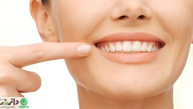 مواد غذایی که دندانهای شما را نابود میکنند +اینفوگرافیک
