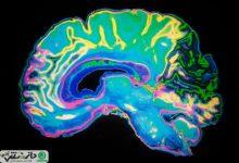 مغز افراد خلاق ، منسجم تر از افراد معمولی است